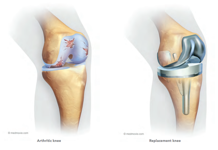 replacement-knee